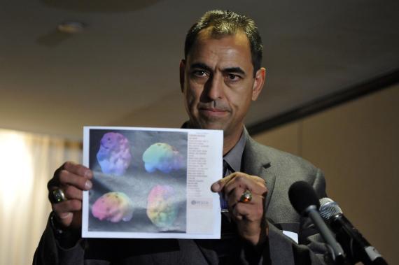 George Visger con su escáner cerebral