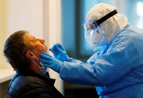 La fiebre y la tos son muy  frecuentes en los casos de coronavirus, pero otros síntomas menos habituales también podrían alertar de una infección.