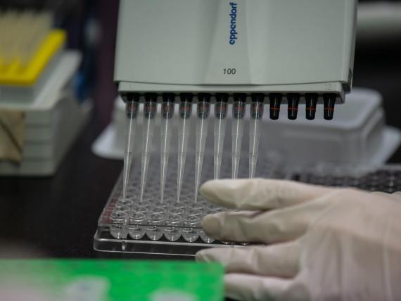 Un técnico de laboratorio trabaja en una prueba de anticuerpos para el coronavirus MERS en Corea del Sur.