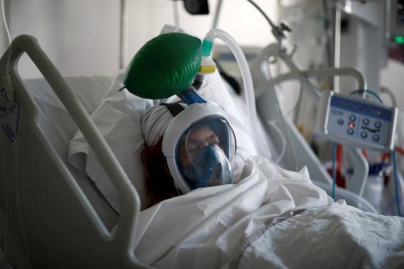 Un paciente de coronavirus con la máscara de snorkel para respirar mejor