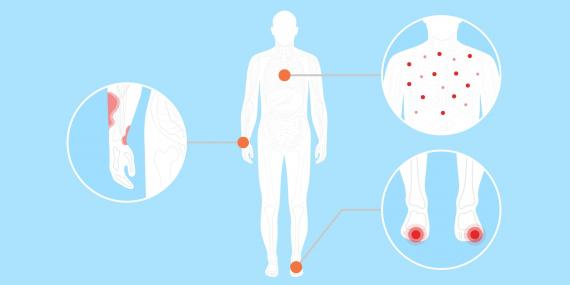 Pacientes con COVID-19 están presentando erupciones en la piel, ampollas y dedos hinchados.