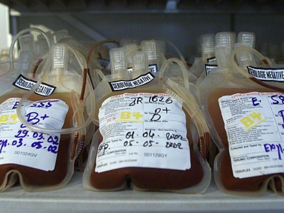 Bolsas que contienen sangre B positiva.