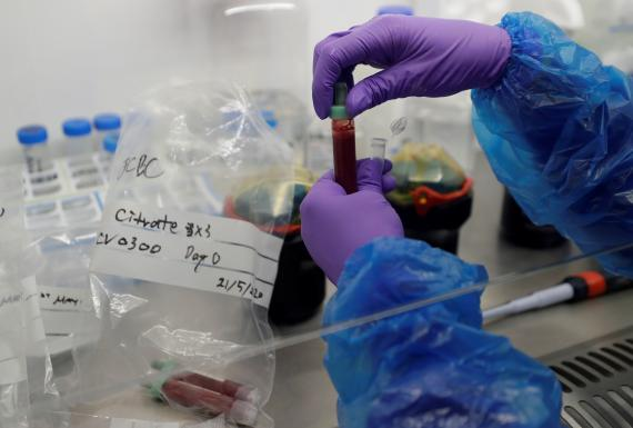 Laboratorio de procesamiento de sangre en el Instituto de Inmunología Terapéutica y Enfermedades Infecciosas de Cambridge.