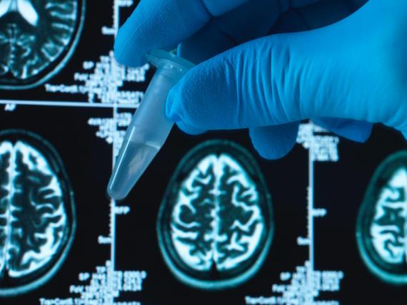 Scientists have created an Alzheimer's blood test that could be available within a few years