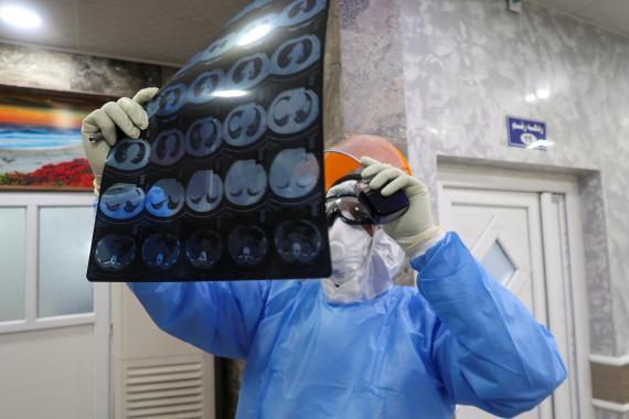 Radiografía de los pulmones de un hombre contagiado con COVID-19, la enfermedad del nuevo coronvirus.