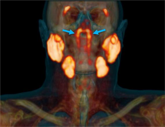 La estructura de las glándulas tubáricas, indicada por flechas azules, junto a otras glándulas salivales principales en naranja.
