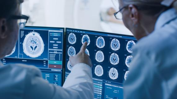 Médicos mirando un escáner cerebral.