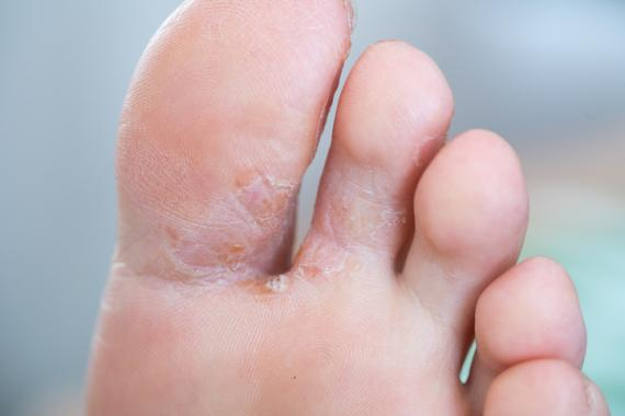 Problema dermatológico en los pies por coronavirus.