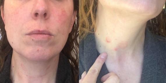 A Jessica Bortz Schaap le salió un sarpullido en el cuello meses después de que tuviera síntomas de COVID-19.