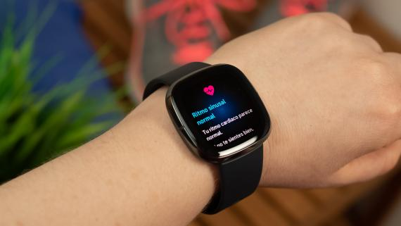 Fitbit Sense, análisis y opinión