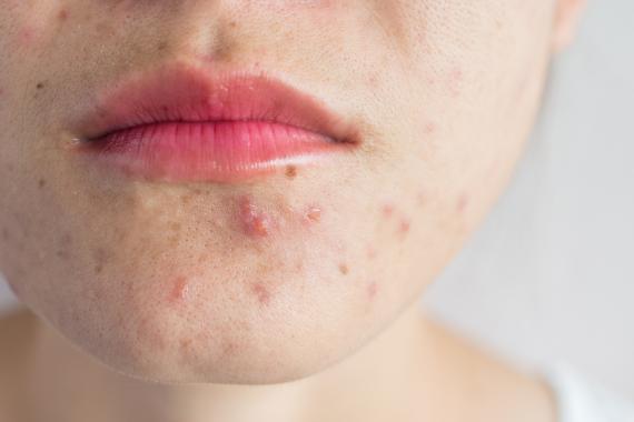 Mujer con acné.