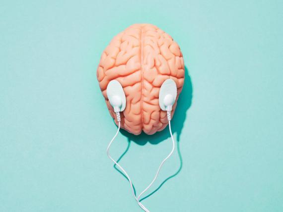 La terapia de estimulación eléctrica transcraneal utiliza electrodos para tratar de inducir el sueño profundo.