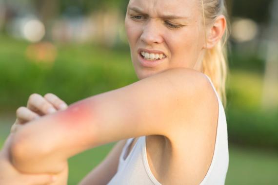 Lidl lanza un nuevo dispositivo para 'sobrevivir' a las picaduras de mosquitos este verano