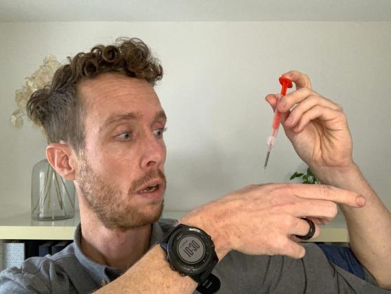 Peter Joosten muestra cómo se implanta su chip RFID.