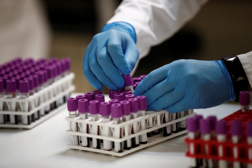 Muestras de pruebas serológicas de coronavirus en la plataforma técnica del laboratorio Biogroup-LCD en Levallois-Perret, cerca de París, el 18 de mayo de 2020.